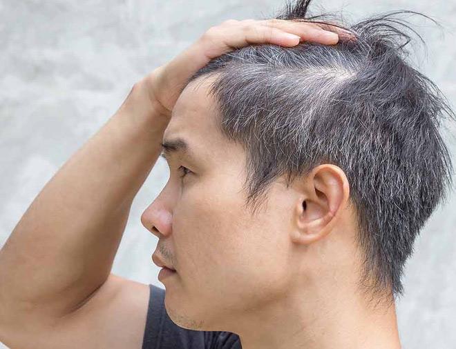 hà thủ ô tươi và các bệnh tóc bạc sớm