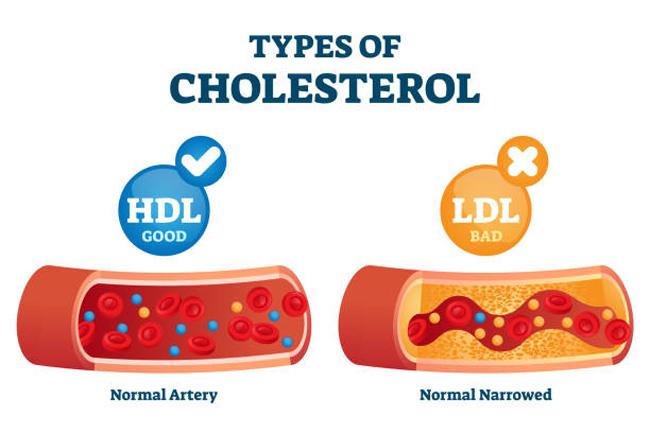 nghệ vàng giảm LDL cholesterol