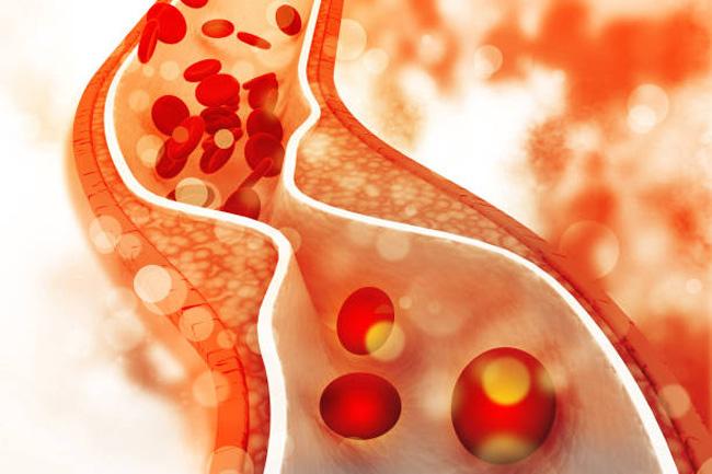 nghệ vàng phòng xơ vữa mạch máu